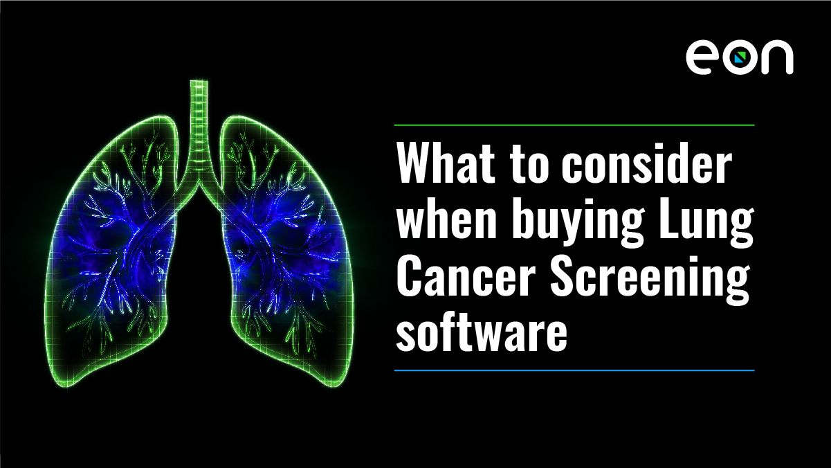 Eon's Guide To Buying And Implementing Lung Cancer Screening Software