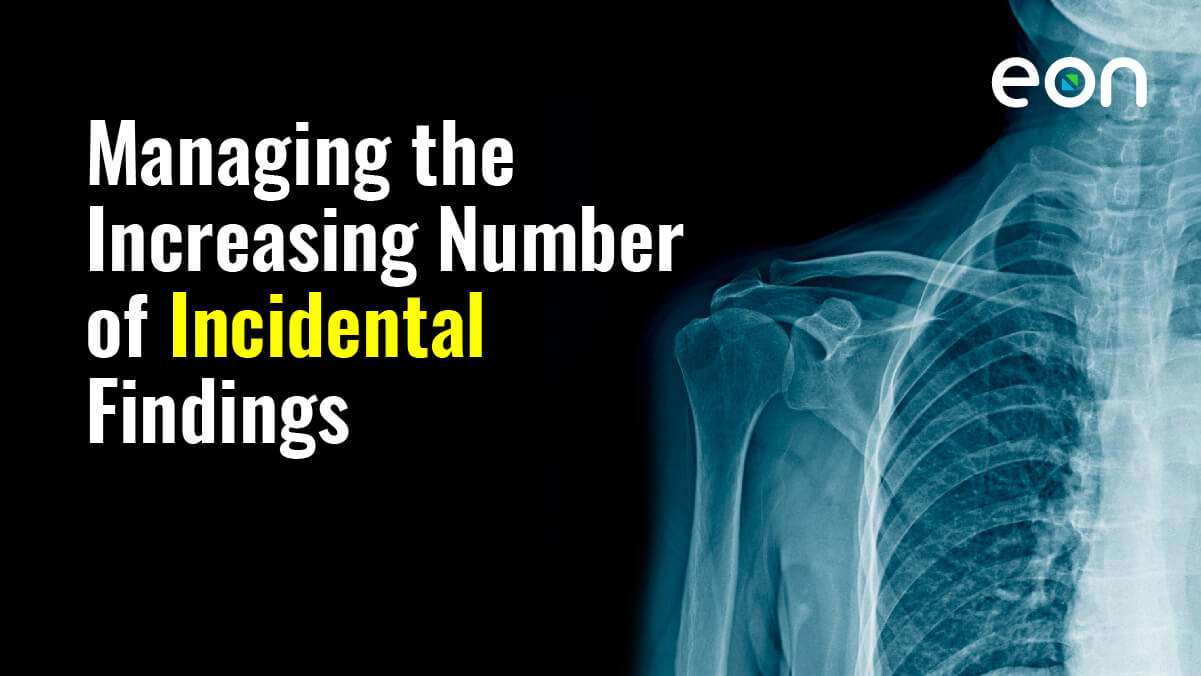 Incidental Abnormalities in Radiology