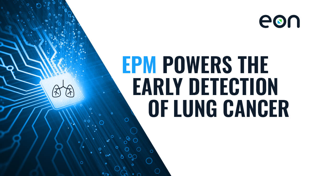 Eon's EPM Incidental Pulmonary Nodule Solution Improves Patient Outcomes and Increases Revenue