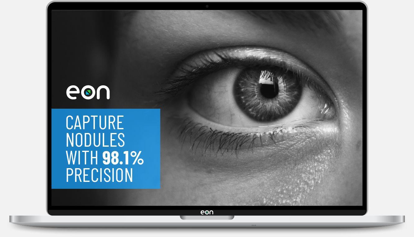Capture nodules with 98.1% precision